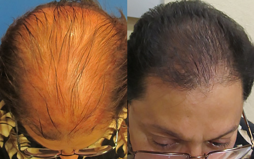 Before 1st treatment & right after 3rd treatment