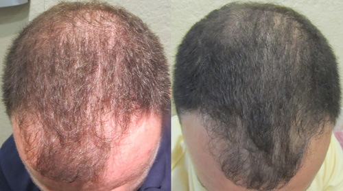 Before treatments after second treatment